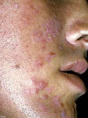 Can You Get Herpes All Over Your Face? And If So How Does It Look? Please Help? 2