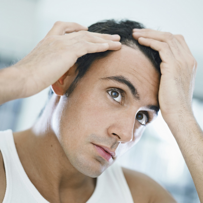23 Of Men Will Have Some Hair Loss By Age 35 Hair Loss