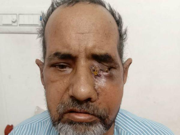 Steroids were given to sugar patients, now eyes have to be removed,  patients also found in Bikaner | शुगर के मरीज को कोरोना के इलाज में  स्टेरॉयड दिए, इससे ब्लैक फंगस अटैक