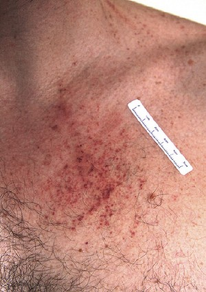 Police photograph of injuries on Gerard Baden-Clay's chest.
