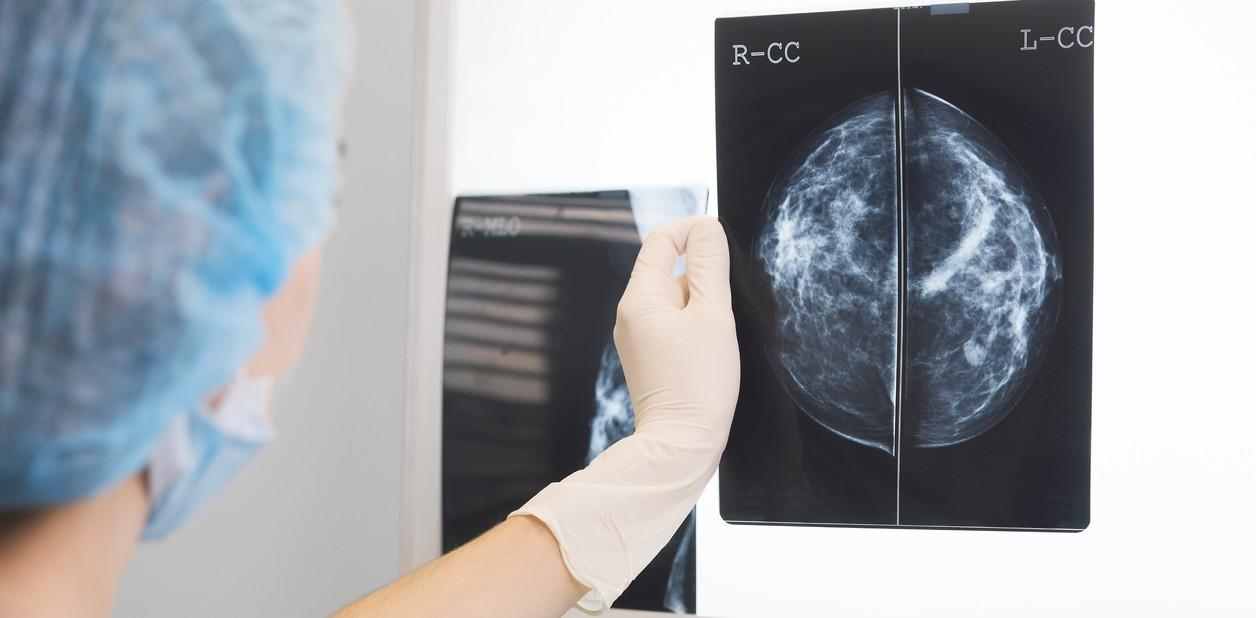 La mortalidad por cáncer podría aumentar hasta un 60% en Argentina debido al coronavirus