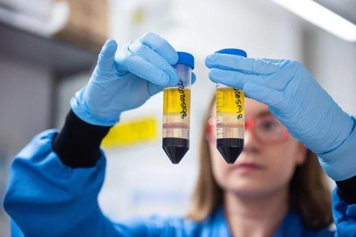 Cuando se inyecta la vacuna, el sistema inmunológico responde produciendo anticuerpos y células T . Foto: dpa