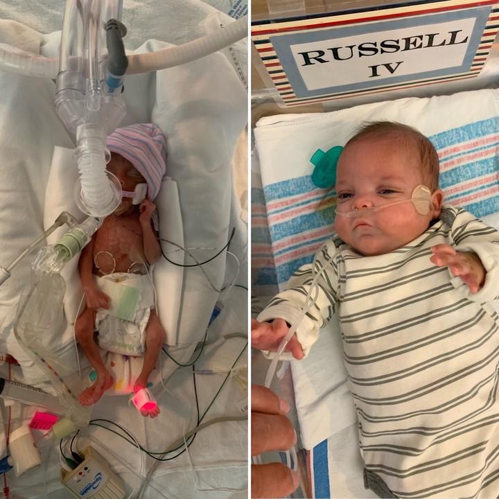 El ayer y hoy de Russell William Appold Jr. tras estar 133 días internado en la Unidad de Cuidados Intensivos Neonatales de un hospital de Lousiana, EE.UU..