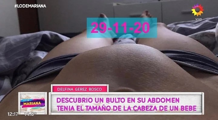 The tumor that was removed from Delfina Gerez Bosco.  TV Capture