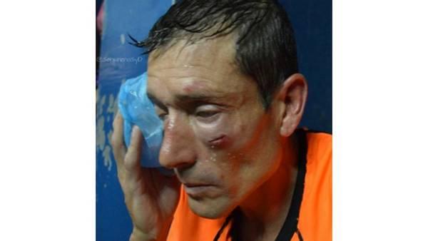 Así le quedó la cara al árbitro Claudio Elichiri del partido entre Sarmiento de Ayacucho y Sansinena tras la paliza recibida en la cancha. (Twitter)