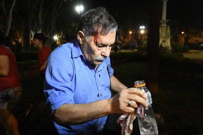 El fotógrafo de la agencia Télam José Granata recibió un impacto de bala de goma en la cara. FOTO: JUAN JOSE GARCÏA