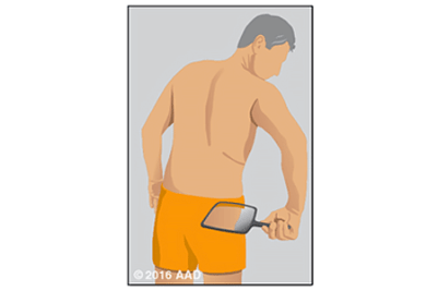 Illustration of a person holding a hand mirror checking his back and buttocks for signs of skin cancer