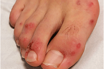 COVID toes, rashes: How the coronavirus can affect your skin