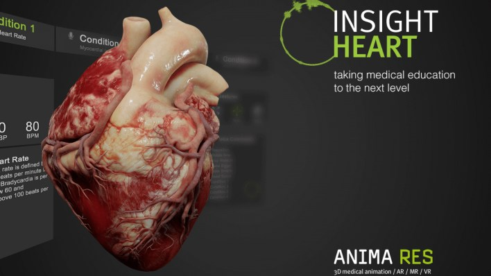 insight heart by anima res   magic leap