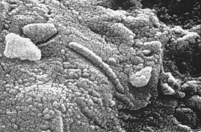 Dead or alive? This famous micrograph of Mars meteorite ALH84001 shows structures that resemble fossils, but most scientists regard them as mineral formations. Perseverance seeks less ambiguous evidence. (Credit: NASA/JSC)