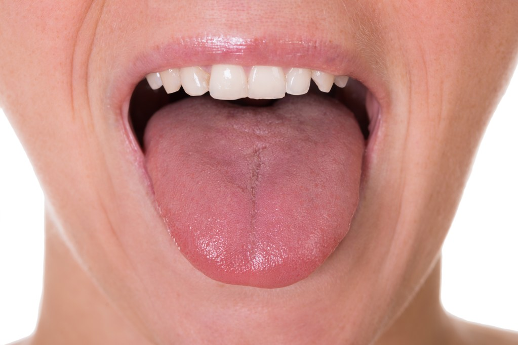 Excess Tongue Fat Could Be Leading to Sleep Apnea, Scientists Find