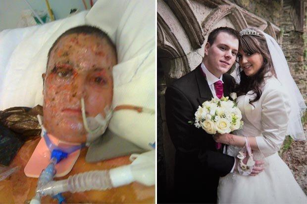 Burn Victim Who Was Engulfed In Fireball Learns To Walk
