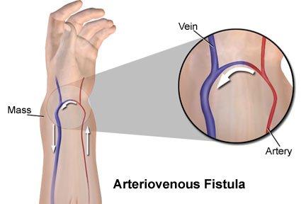Fistula arteri-vena