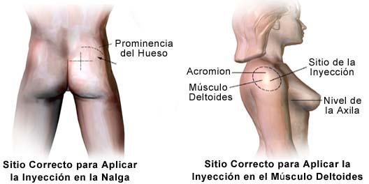 El intramuscular como brazo en inyeccion colocar una