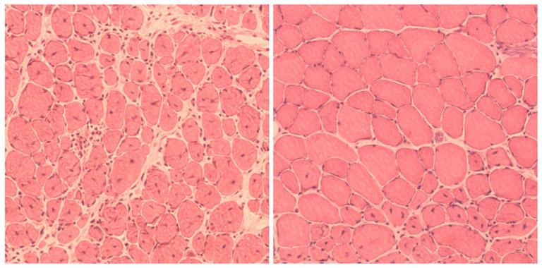 the salk institute for biological studies Regenerierung von Muskelgewebe bei Mäusen, links ohne Yamanaka-Gene, rechts mit diesen Reprogrammierungsfaktoren.