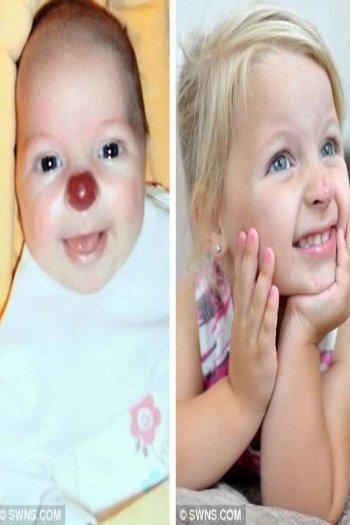 Tanda lahir aneh bayi hidung badut