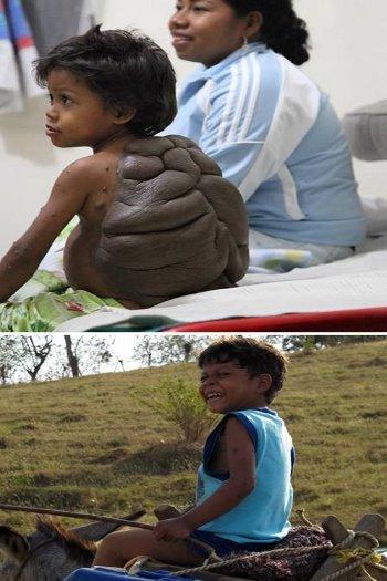 Tanda lahir aneh bocah kura kura
