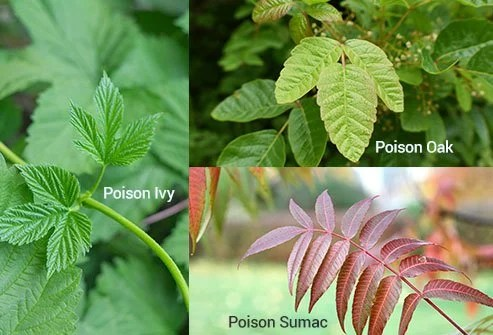 How Do I Get Rid Of Poison Ivy Fast