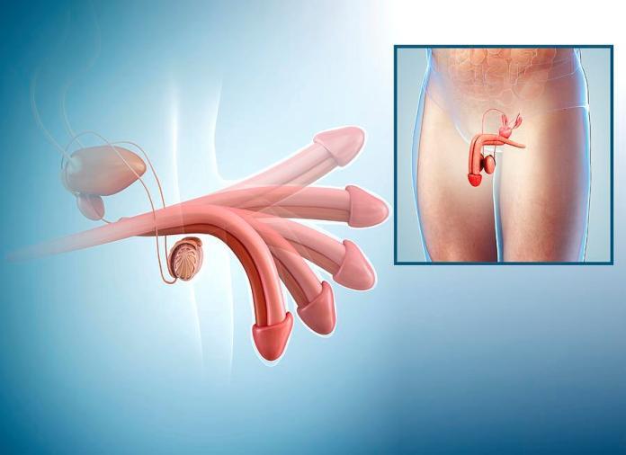 Image result for erection