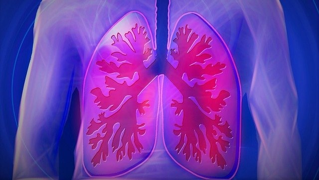 Variations in oral bacteria linked with future risk of lung cancer in people who have never smoked, finds study