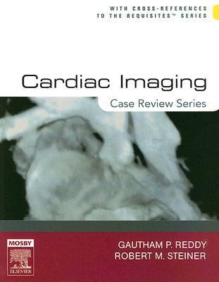 Cardiac Imaging: Case Review Series