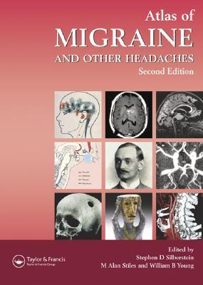 Atlas of Migraine and Other Headaches