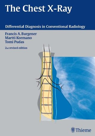 The Chest X-Ray (Differential Diagnosis in Conventional Radiology)