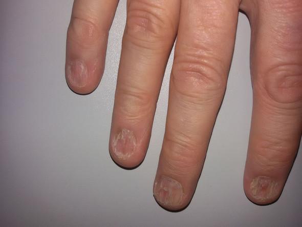 Fingernägel Brechen Ab Und Splittern Nägel