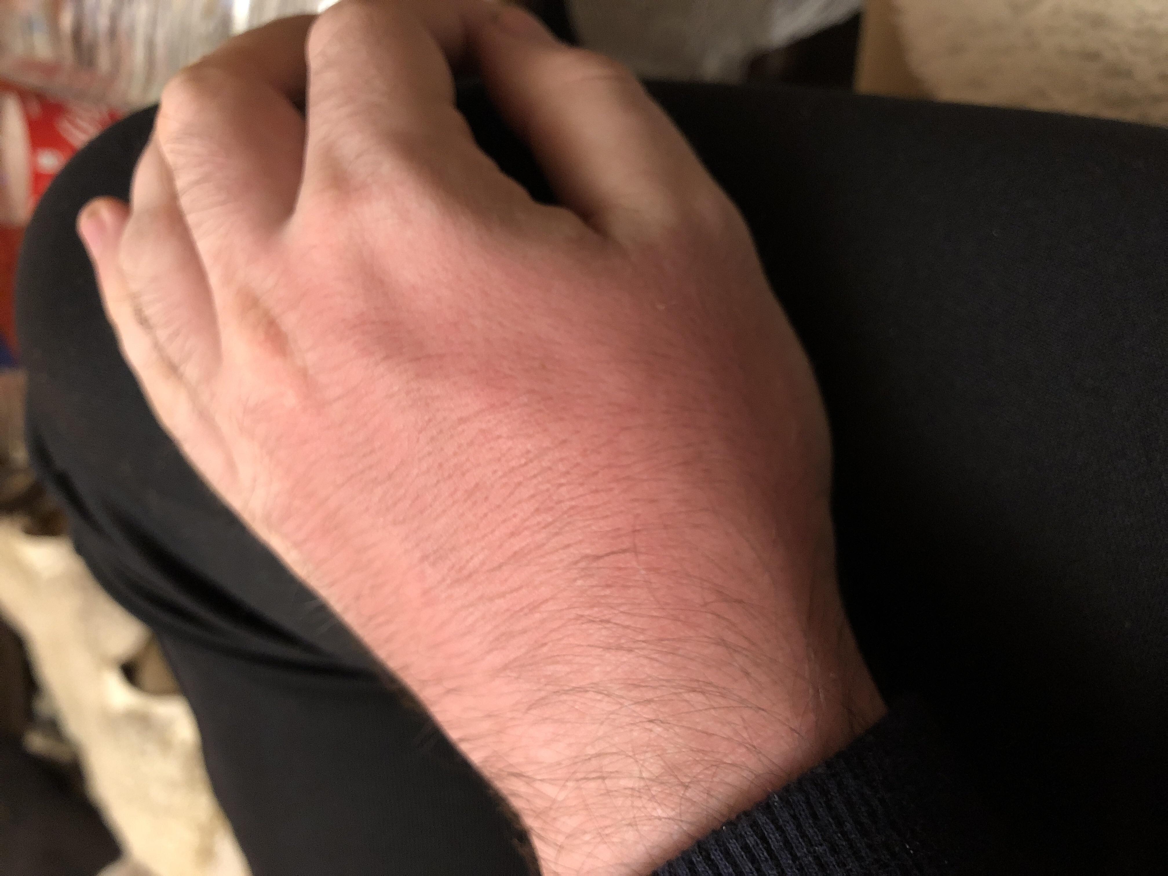 hilfe thrombose in den handen