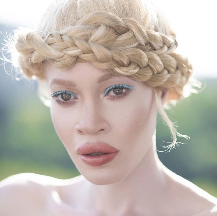 Wet N Wild Chose A Model With Albinism As The Face Of Its