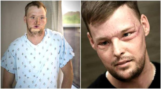 Andrew Sandness: Before and after! (Source: AP)