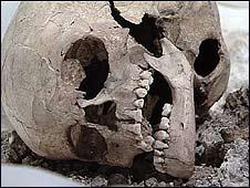 _45418131_skeleton226