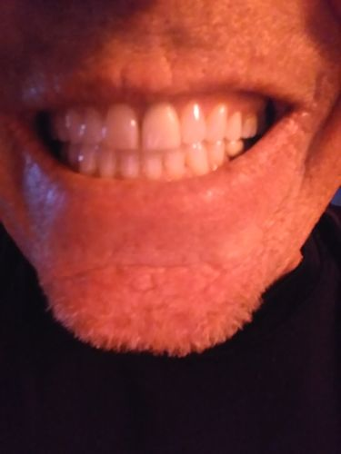 Eugene D. review of Snow® At-Home Teeth Whitening (ALL-IN-ONE KIT)