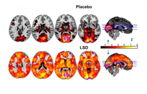 Scientists Observe LSD Effects On The Brain; Why Users