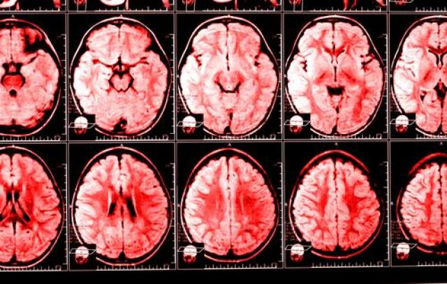 Image result for Chronic Fatigue Patients Suffer 3 Major Brain Abnormalities; Findings May Lead To Clearer Diagnosis