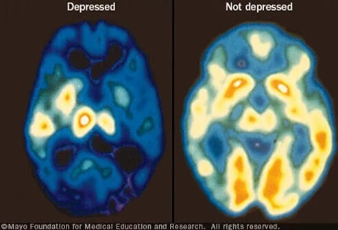 Two Key Lifestyle Factors May Ward Off Depression 2