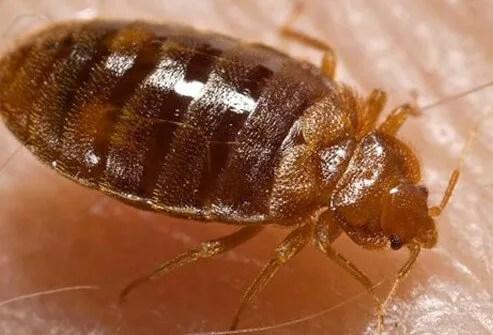 A photo of a bedbug feeding on human skin.