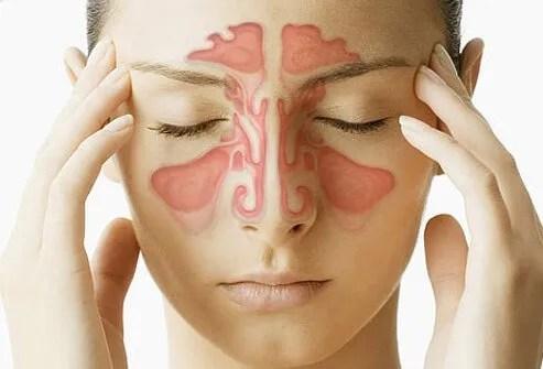 Image displaying the sinuses.
