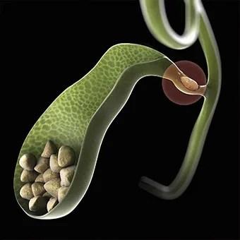 Резултат слика за gallbladder stones