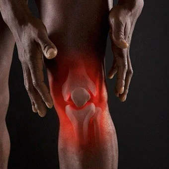 Bursitis is a painful medical condition of the knee bursa.