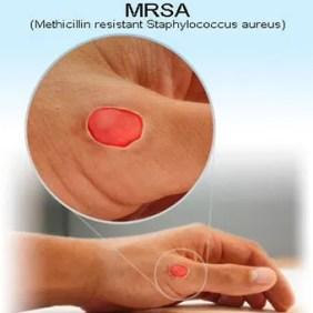 infezione della pelle mrsa contagiosa