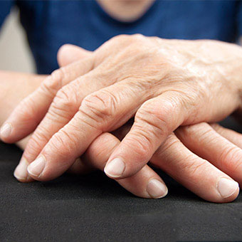 Image result for Rheumatoid Arthritis Symptoms