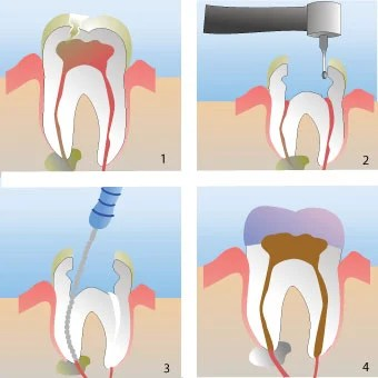 Mulut Membutuhkan Perawatan Saluran Akar- Global Estetik Dental Care