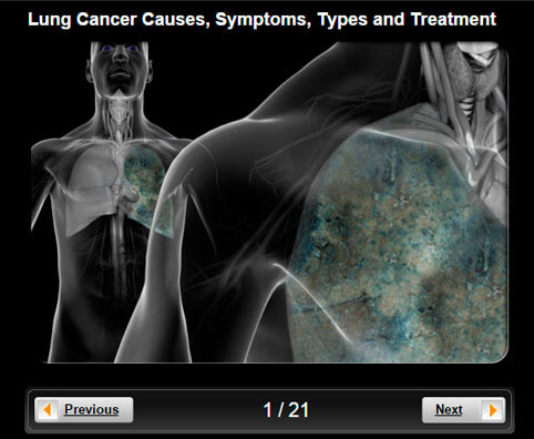 Asbestos Exposure Symptoms Mesothelioma Lawsuit Settlements  C B Table Of Contents  C B Lung Cancer Pictures Slideshow Causes Symptoms Types And Treatment