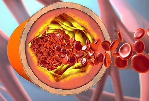 Cholesterol Levels: What You Need to Know?