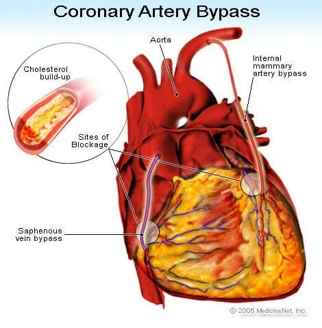 https://i2.wp.com/images.medicinenet.com/images/illustrations/coronary_artery_bypass.jpg