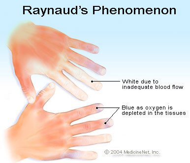 Picture of Raynaud's phenomenon