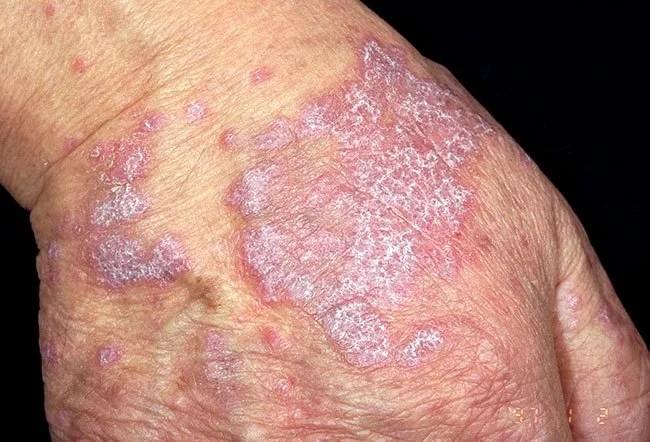 Lichen Planus Picture Image on MedicineNet.com