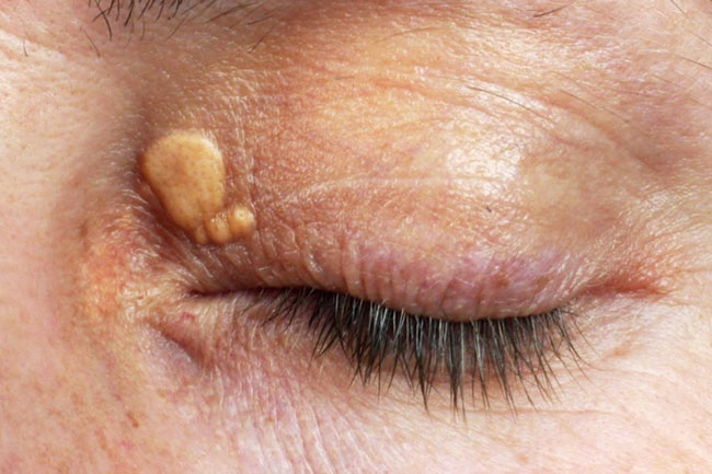 Image result for xanthelasma
