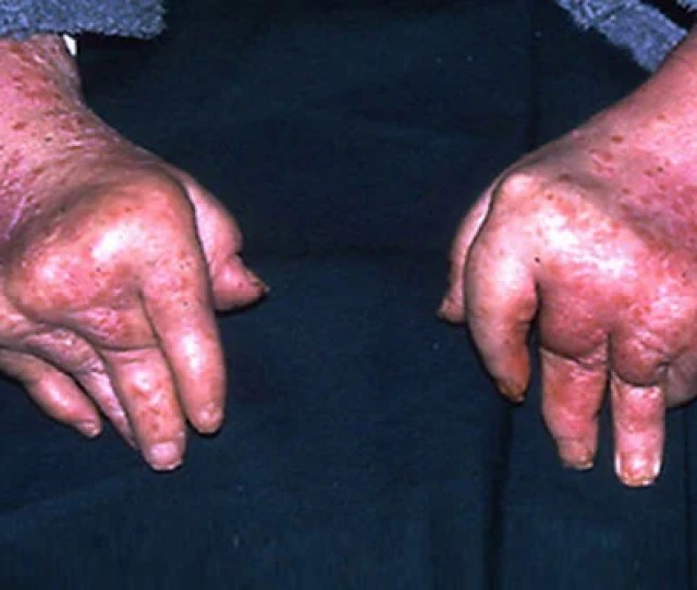 Psoriatic Arthritis Can Cause Swollen Red And Painfully Inflamed Joints